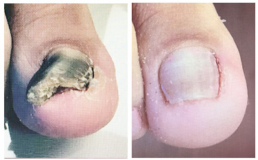 Toenail Fungus Photos Los Angeles Before And After